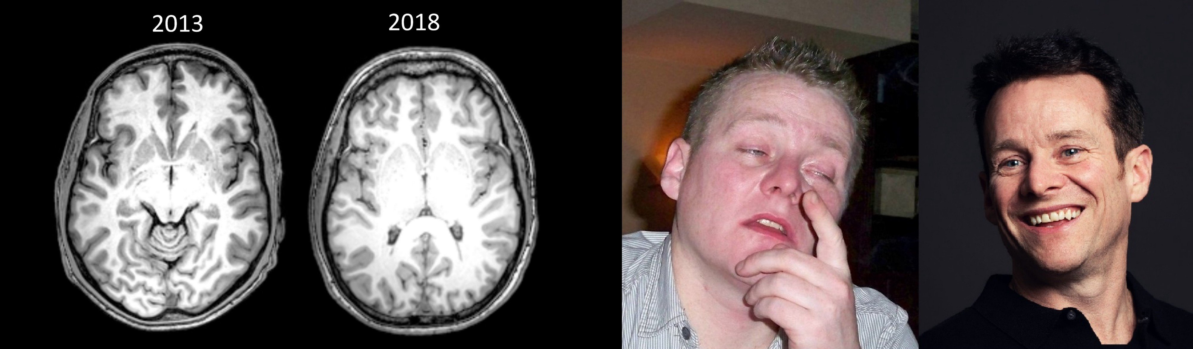 Source: Unprocessed scans of my brain taken in 2013 and 2018. These scans contain the slice showing the anterior commissure, the standard anatomical structure used to compare brain scans. It was difficult to make exact slice comparisons as the images were scanned on different MRI machines using a different resolution.