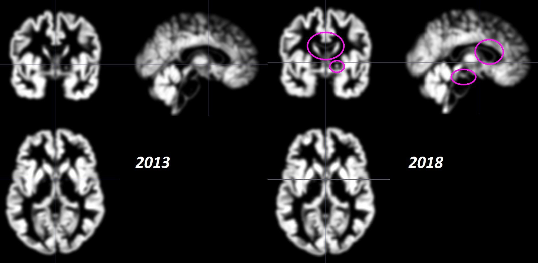 Source: Grey matter scans of my brain taken in 2013 and 2018. Although subtle, there is greater grey matter density in the scan from 2018. Unlike the comparison scans above, these scans have been processed using a normalization technique which is required for the analysis.
