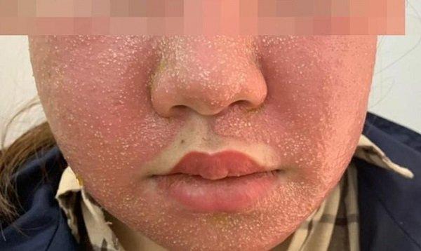 Đắp mặt nạ đông y làm trắng da, cô gái 21 tuổi nhận cái kết đắng