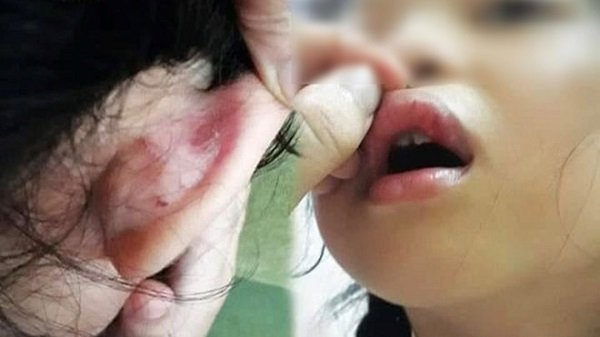 Lời trần tình của cô giáo bị phụ huynh tố đánh học sinh chảy máu, rách tai