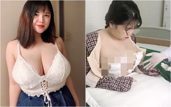 Phẫu thuật giảm bớt kích thước hơn 1m của vòng một, hot girl Việt bức xúc vì bị chỉ trích, lên tiếng đáp trả đầy mạnh mẽ