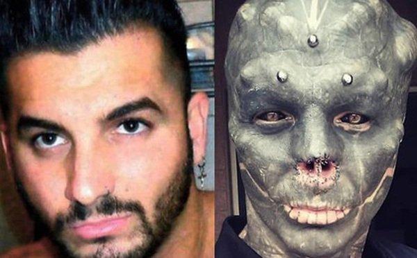 Đẹp trai không muốn, anh chàng quyết tâm phẫu thuật mặt, cắt mũi xẻ lưỡi cho giống người ngoài hành tinh nhất có thể