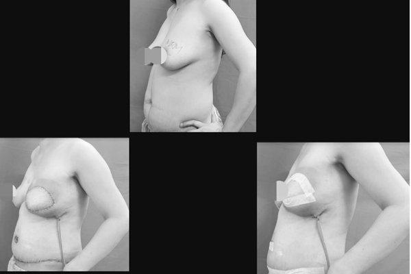 Mắc ung thư vú, người phụ nữ vỡ oà hạnh phúc với diện mạo mới