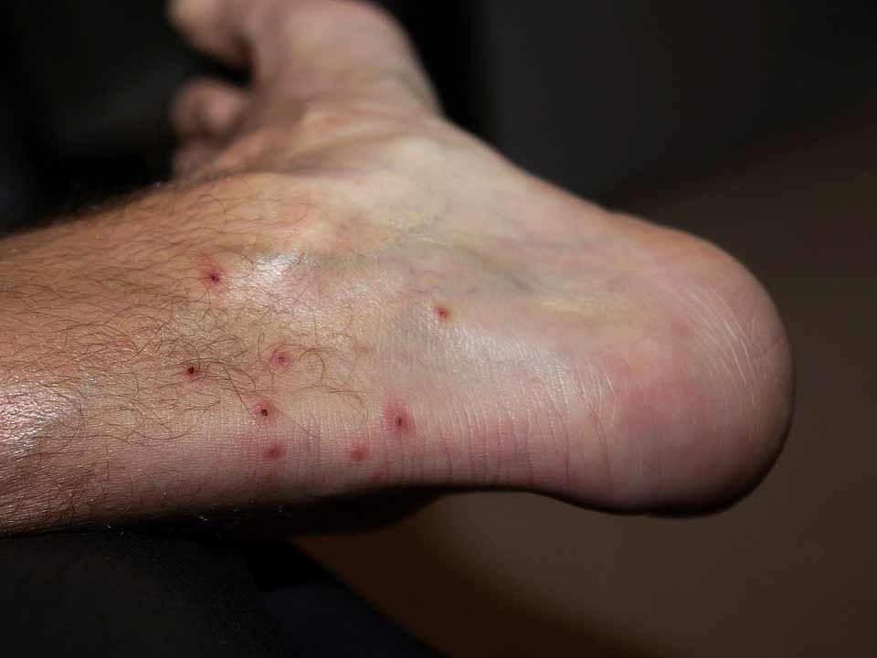 a foot with small red bug bites and scabs